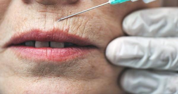 кисетные морщины вокруг губ, как избежать?