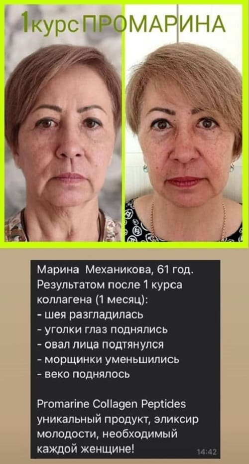 Пептиды коллагена Промарин. 8 критериев как выбрать качественный коллаген!